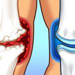 15 продукта, които помагат при болки в ставите.